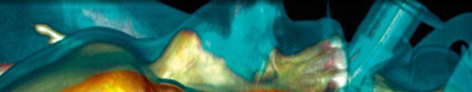 Un Aclaramiento de Lactato de dos horas predice un resultado negativo en pacientes con insuficiencia cardiorrespiratoria